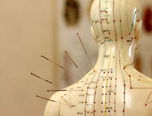 Akupunktur Terminänderung